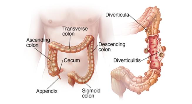 Diverticulitis - chir 33